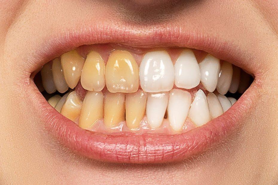 दांतों के पीलेपन से छुटकारा पाने के लिए इन उपायों को आजमाएं - मनाचेTalks  Hindi